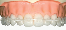 tooth-alignment-triodent