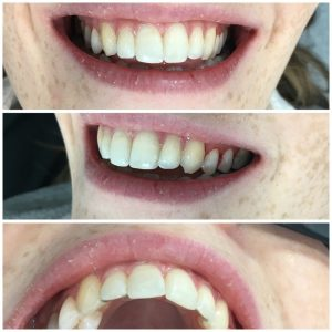 Cfast leah says i wasnt overly bothered about the braces being discreet more what effect they could have but it was a bonus when i found out they were solutioingenieria Images